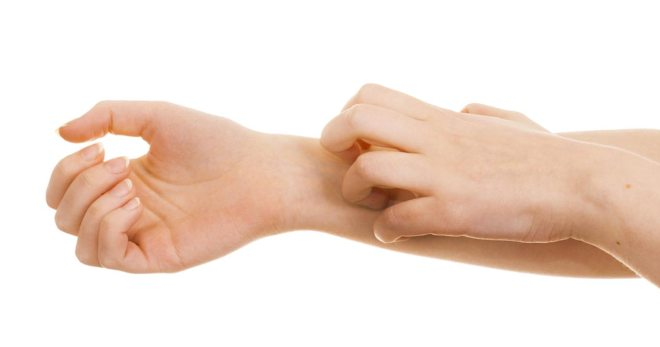Мокнущий лишай (экзема): причины, симптомы и лечение у человека