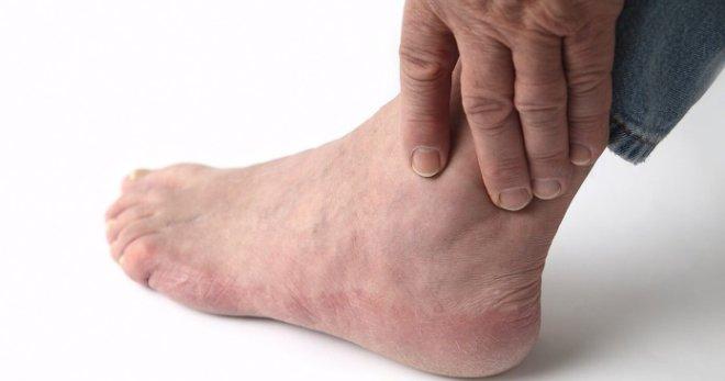 Отеки ног – все возможные причины и лучшее лечение
