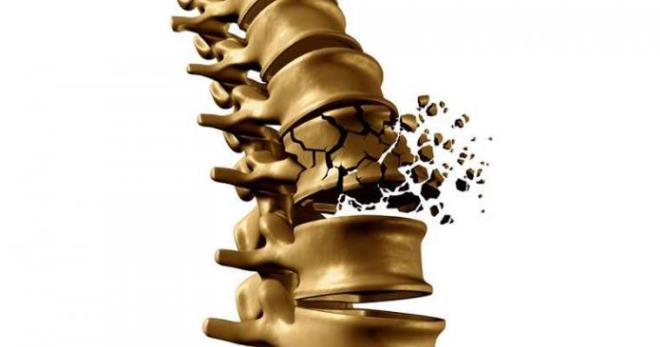 Лечение остеохондроза остеопороз поясничного отдела позвоночника -