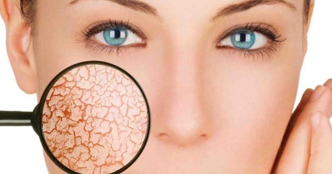 Почему шелушится кожа на лице и причины покраснения