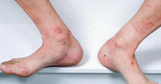 Глава 2 Кожные заболевания ног