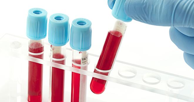 Креатинин в крови – что это такое, для чего определяют показатель, и как его корректировать?
