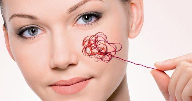 Купероз на лице – причины и лечение сосудистых звездочек