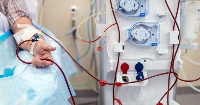 Гемодиализ почек: что это такое в медицине, показания, аппарат для диализа