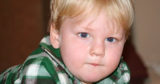 Синдром прадера вилли у девочек. Синдром Прадера-Вилли: как распознать патологию развития? Причины возникновения синдрома Прадера-Вилли
