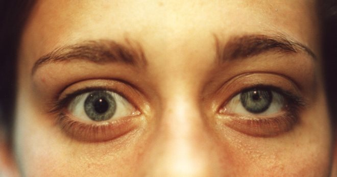 Синдром горнера что это такое