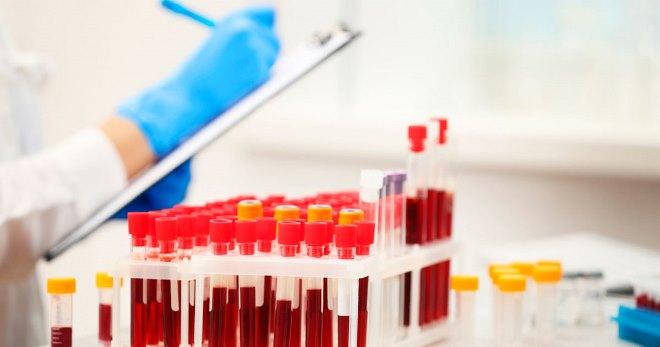 Анализ крови на ГГТ: расшифровка, норма, что показывает отклонение