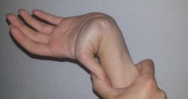 Дисплазия соединительной ткани - это... Что такое Дисплазия соединительной ткани?