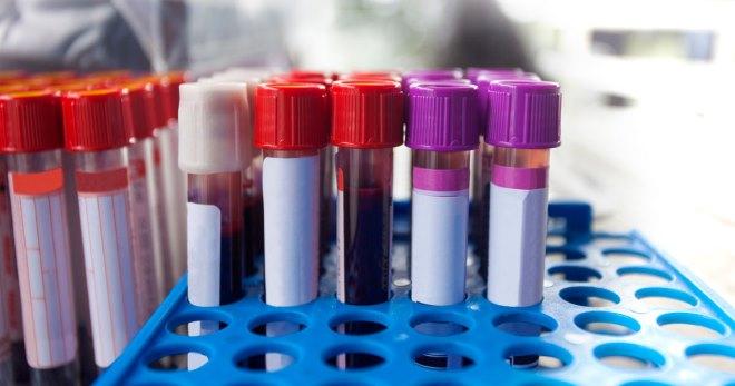 ГГТ в биохимическом анализе крови – что делать, если показатель повышен?