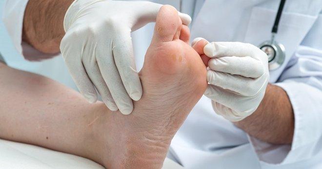 Как вылечить экзему на руках и ногах навсегда