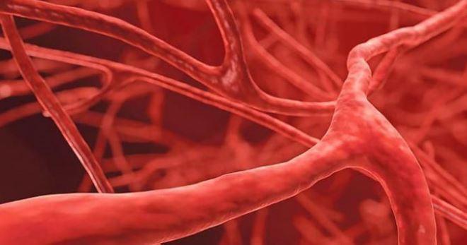 Васкулит сосудов головного мозга симптомы