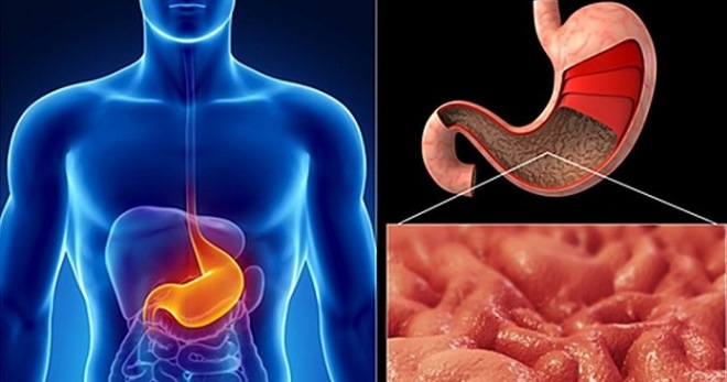 Аутоиммунный гастрит - симптомы, лечение и диета