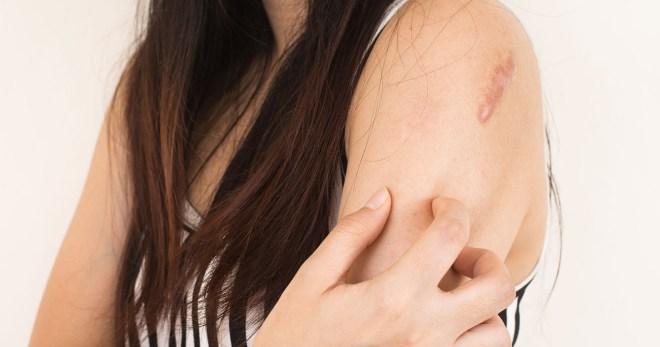 Грибок кожи (кандидоз, себорея кожи головы, микроспория, отрубевидный разноцветный лишай) – лечение, препараты, мази, таблетки, шампунь