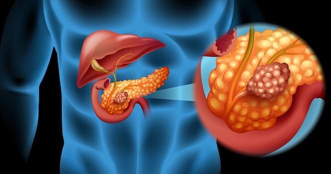 Признаки и симптомы рака поджелудочной железы на ранних стадиях