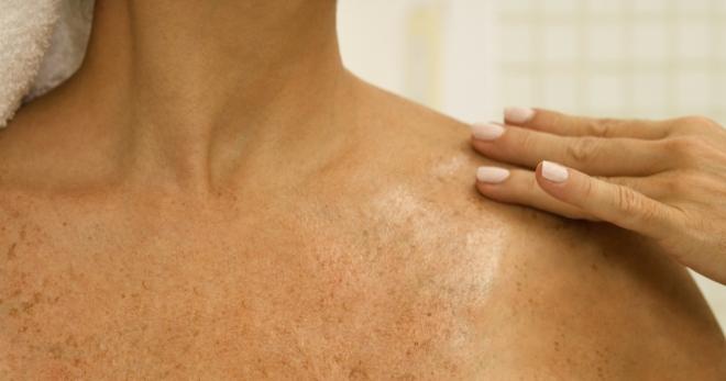 Белый лишай - фото пятен на коже у ребенка, у человека, лечение, симптомы, мазь