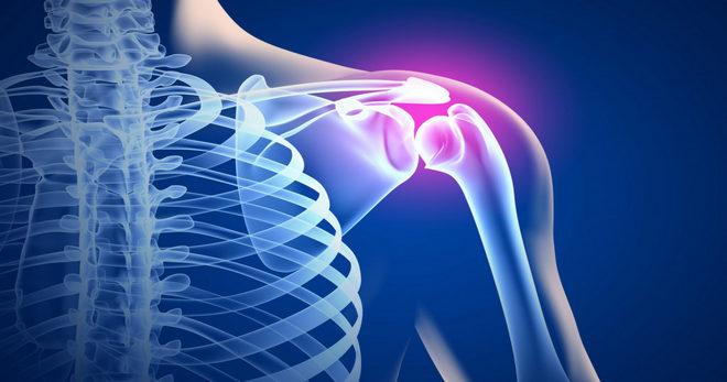 Синовит плечевого сустава: что это такое, симптомы и лечение