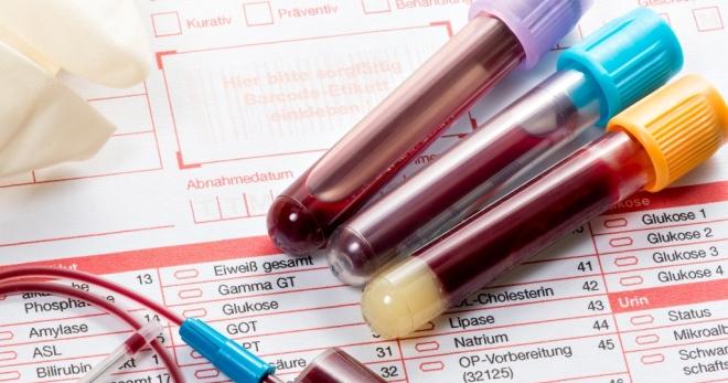 Диагностика вируса папилломы человека (ВПЧ). Вирус папилломы человека у женщин