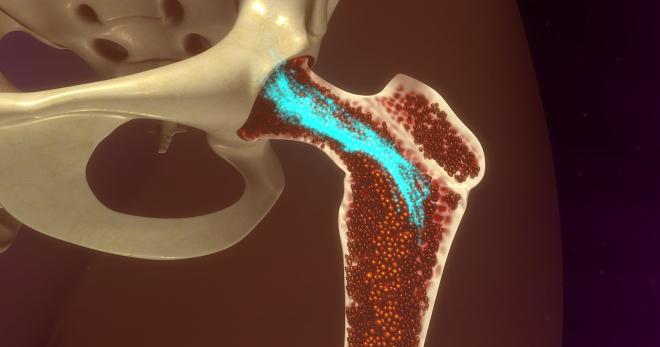 Костный мозг человека - это... Что такое Костный мозг человека?