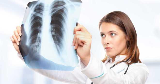 Пневмония без кашля – симптомы, лечение Лазолваном, Амбробене и Амброксолом