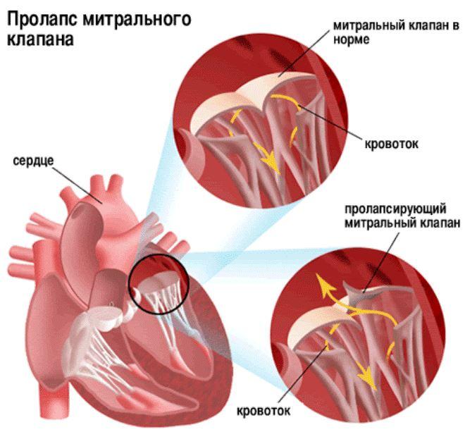 Что такое пролапс митрального клапана сердца