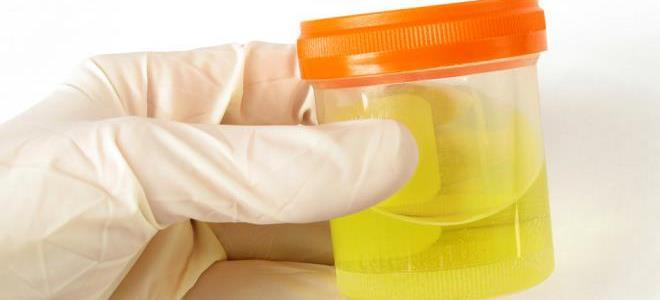 Диабетическая нефропатия - стадии, симптомы и лечение