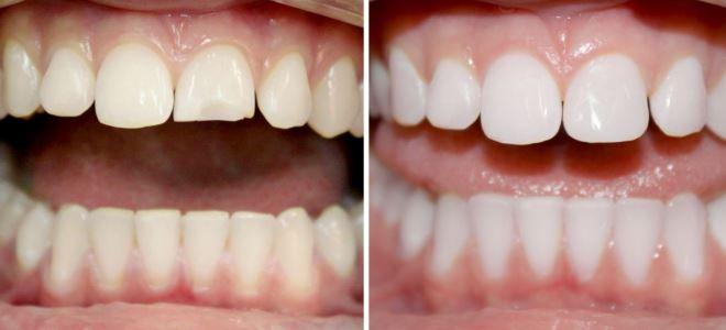 можно ли делать виниры на кривые зубы
