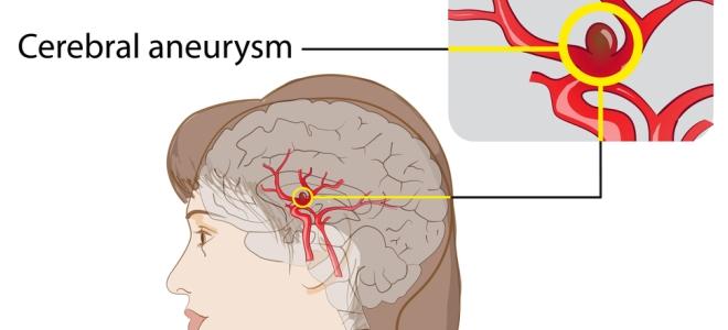 Аневризма сосудов головного мозга – причины возникновения, симптомы, лечение, последствия после операции