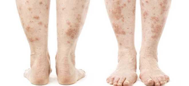 Псориаз на ногах причины возникновения симптомы методы терапии осложнения