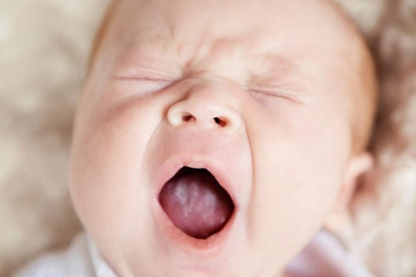 Чем лечить и как молочницу