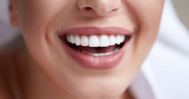 Виниры: секрет безупречной улыбки