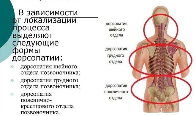 Артроз кисти руки симптомы и лечение народными средствами