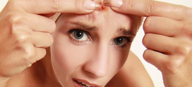 Как избавиться от фурункула на лице