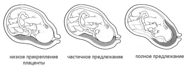 Беременность плацента низко