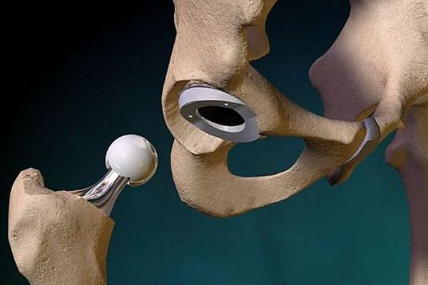 физзарядка после операции на тазобедренном суставе