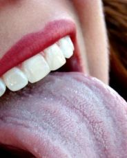 белый налет на языке