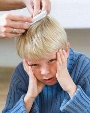 как вывести вшей у ребенка