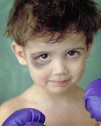 Синяки у ребенка