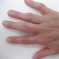 На суставе пальца руки нарост хрустят сустави в ногах