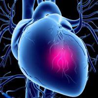 Стабильная и нестабильная стенокардия отличия