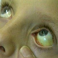 Гепатит Симптомы У Женщин Первые Признаки Фото