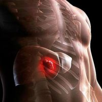 рак печени первые симптомы