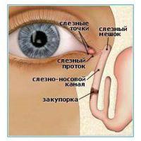 почему  у ребенка гноятся глаза