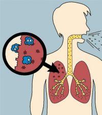 Туберкулез - лечение