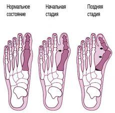 Боль в пальцах ног - причины характер лечение