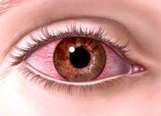 Почему краснеют и чешутся глаза