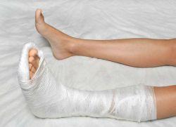 женская нога в гипсе фото