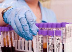 Анализ аст норма для женщин