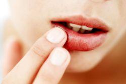 простуда на губах как лечить быстро
