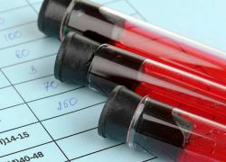 анализ крови мочевая кислота норма у женщин
