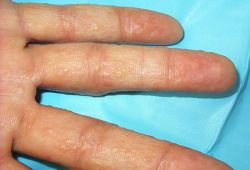 мелкие пузырьки на пальцах рук чешутся